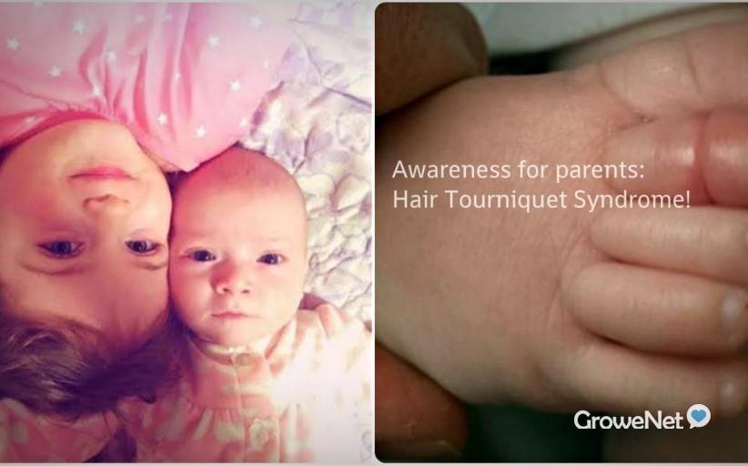 """疯传了18,000次![新手爸妈] 一定要看这个!几个月宝宝""""哭个不停""""可能是因为这个!Hair Tourniquet Syndrome!"""